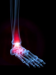 Do you have foot problems and pain? Call David Fraser to see how we can help cure your pain.